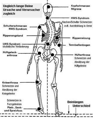 wirbel verschoben symptome